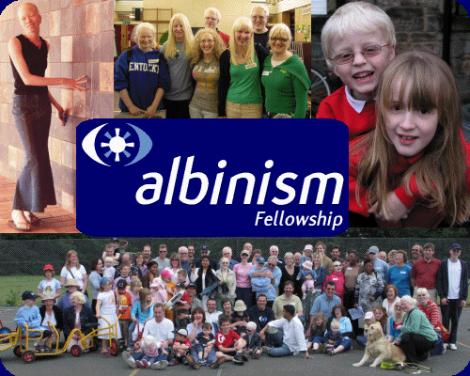 albinism fellowship UK ireland